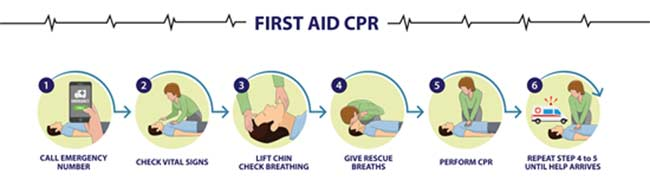 Things to consider before CPR