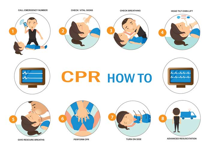 what the steps of CPR are