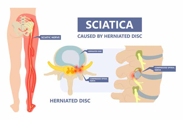 How to Relieve Sciatica Pain While Driving