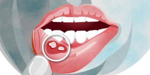 How to Relieve the Pain of Mouth Ulcers