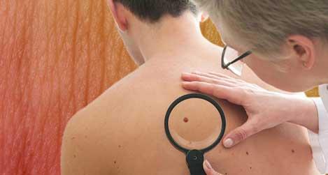 Binding skin tags