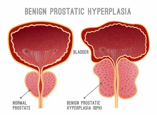 Foods That Are Good For Your Prostate Health
